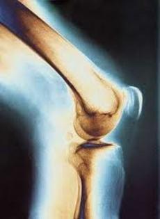 голеностопные плечевые мелкие суставы кисти при этом такие суставы увеличиваются