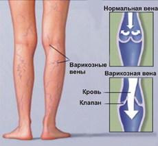 Отекла нога после операции на вены